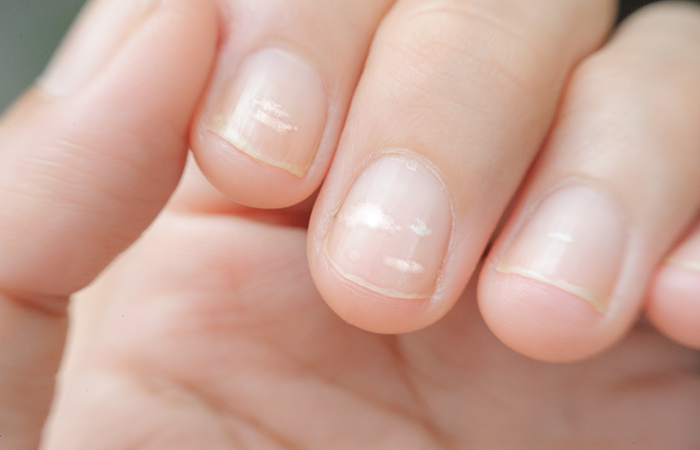 Why do we get white spots on the fingernails